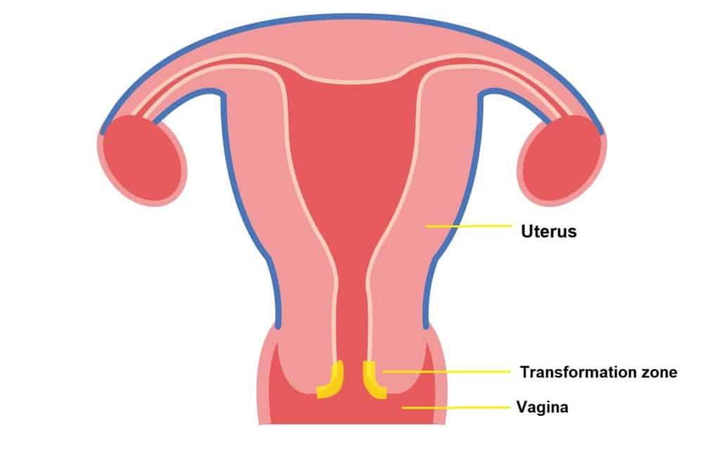 Do I Really Need a Pap Smear?